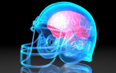 Concussion Sensors