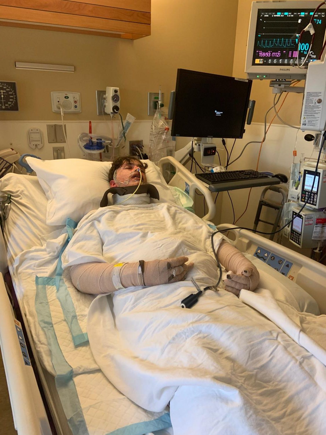 """Hanging on to his life, sophomore Dillon Von Freiberg receives treatment for Steven-Johnson Syndrome. Von Freiberg spent an entire month in the burn unit of the hospital where he wasn't able to eat, drink, or move. """"I had just gotten out of surgery, they had to put a feeding tube in me because everything including my mouth blistered,"""" Von Freiberg said. """"I wasn't able to eat food and I was passed out because of the meds they gave me."""""""